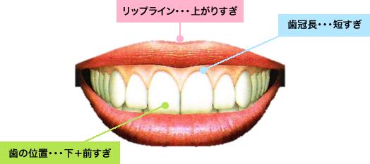 リップライン、上がりすぎ。歯冠長、短すぎ。歯の位置、下+前すぎ