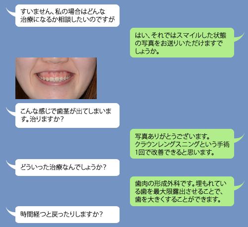 line無料相談 オーラルビューティークリニック白金