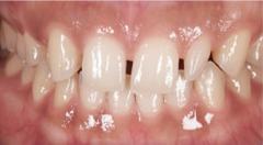 悪い歯並び