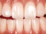 歯の形成のイメージ