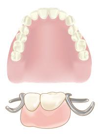 入れ歯 保険