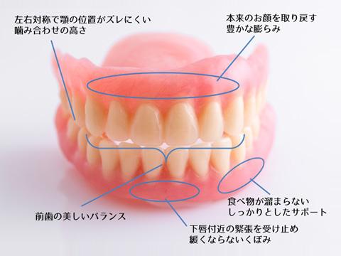 良い入れ歯